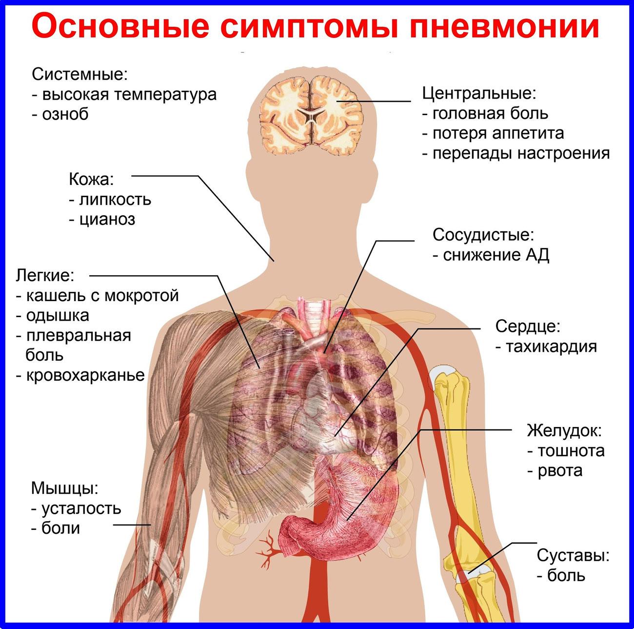 Пневмония легких лечение в домашних условиях
