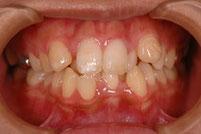 東京の神田ふくしま歯科 八重歯の治療