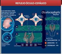 Reflejo oculocefalico, Neurologia, simulador medico