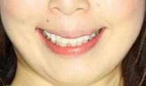審美歯科と口元