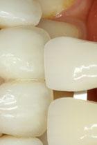 歯の色合わせ