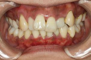 歯茎の整形をしない場合
