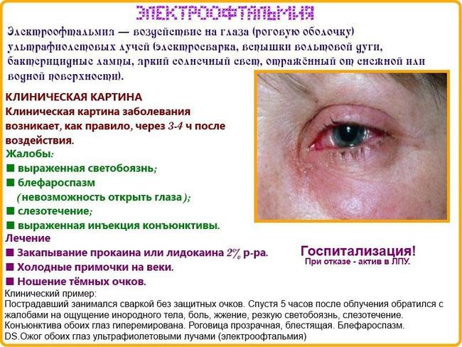 Химический ожог глаз лечение в домашних условиях
