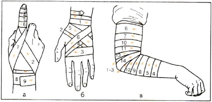 Как сделать повязку на руку ребенку 875