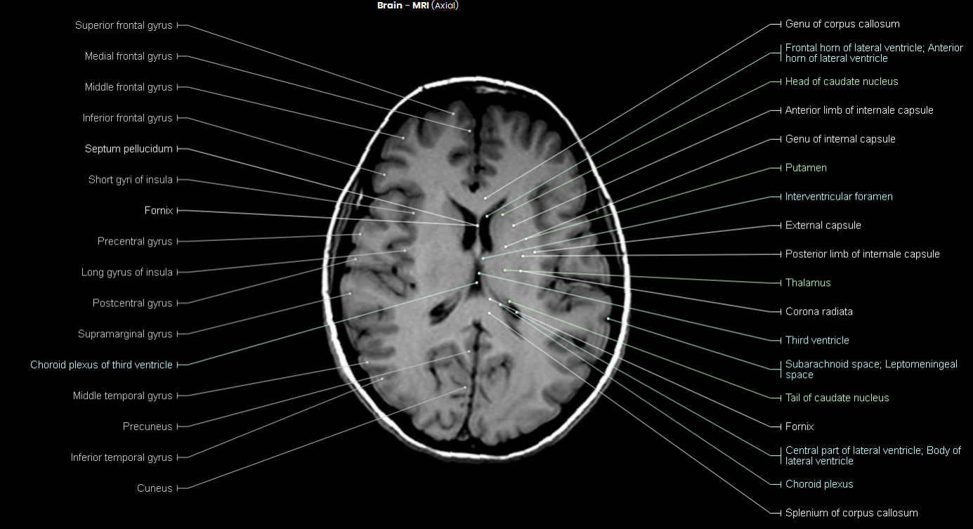 Brain mri anatomy 6012991 - follow4more.info