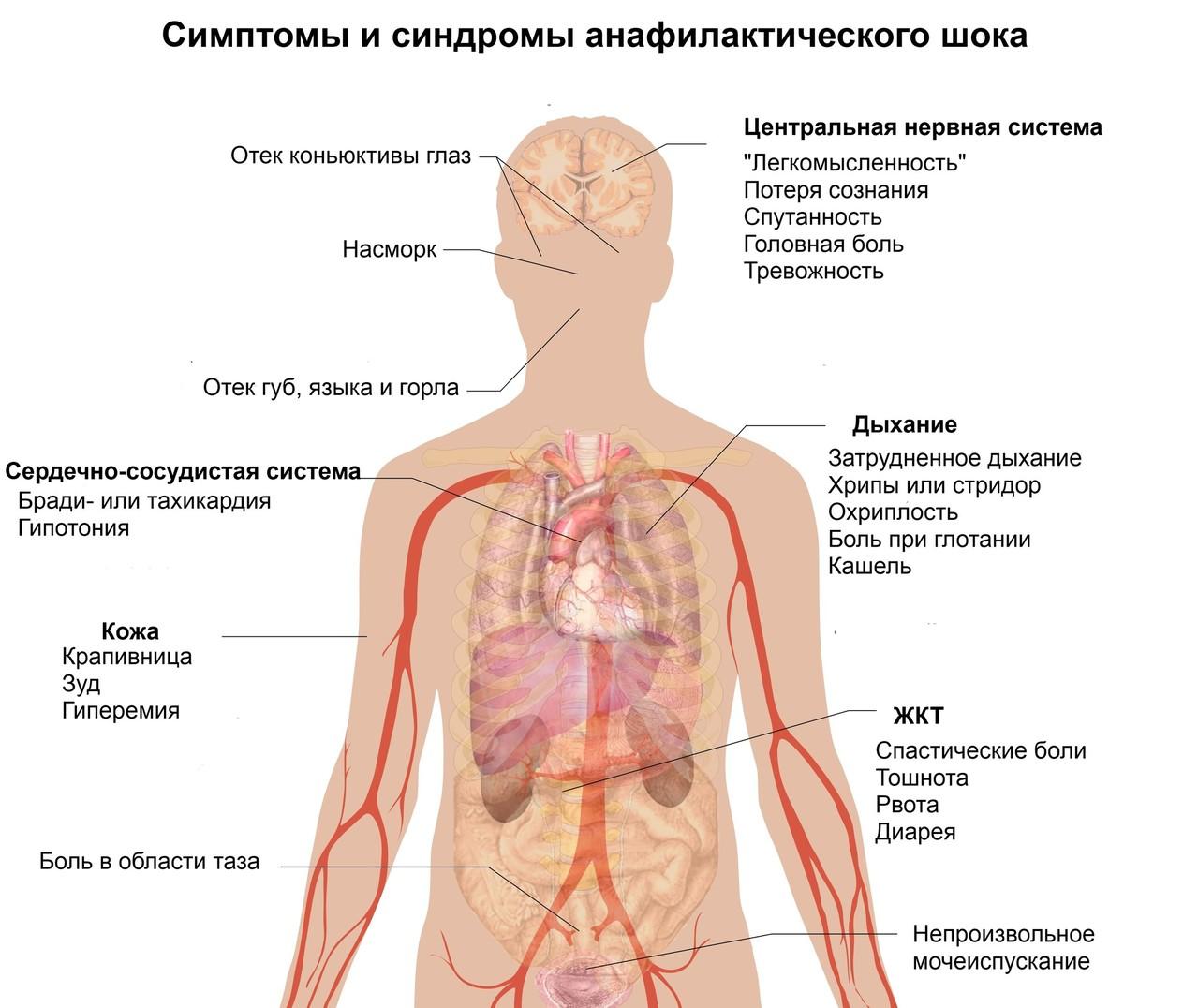 Схема лечения геморрагического шока