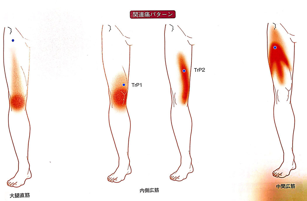 曲げる 痛い 膝 突然 と 半月板損傷になってやってはいけない4つの事