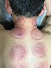 小牧 鍼灸 腰痛 肩こり 吸い玉