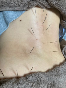 小牧 鍼灸 はり 治療 腰痛 坐骨神経痛 自律神経 頭痛 めまい 過敏性腸症候群 下痢 便秘 食欲不振 背中の痛み ゴルフ