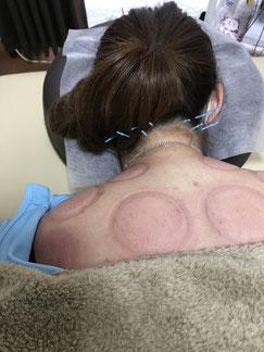 小牧 鍼灸 はり治療 美容鍼 吸い玉 腰痛 ギックリ腰 肩こり 坐骨神経痛