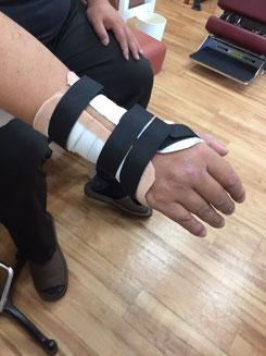 手関節ギプス装具固定の写真
