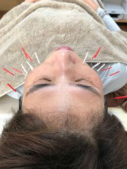 小牧 鍼灸 美容鍼 腰痛 自律神経失調症