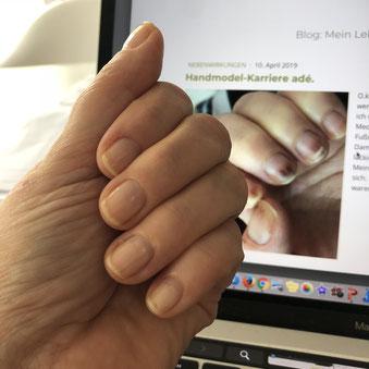 Nägel sind 3 Monate nach der Chemo wieder akzeptabel.