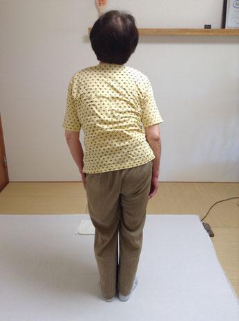 しんそう療方で調整する前の身体がゆがんだ姿勢