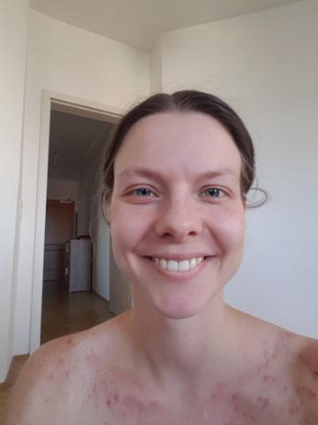 Skin Picking Selbstliebe