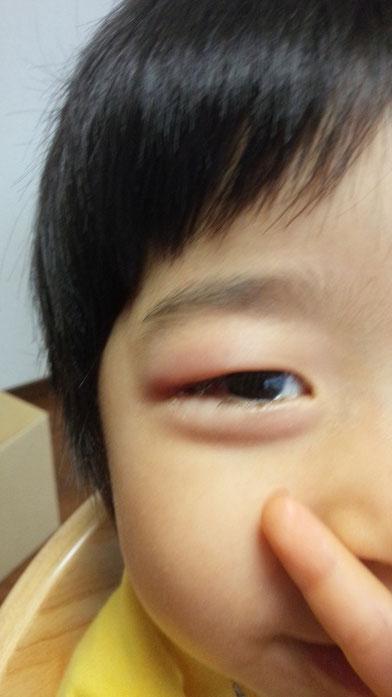 社長の子供の目が腫れている写真