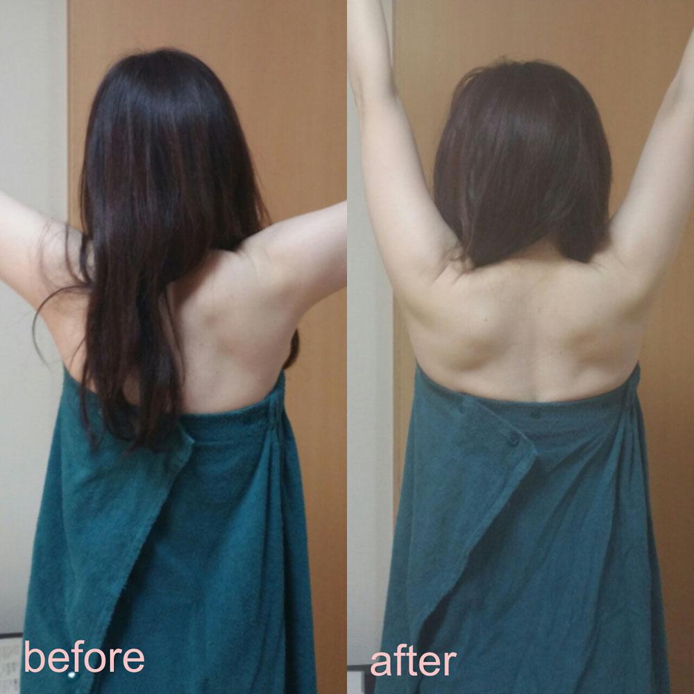 横から肩をあげた時 小顔矯正 関節の詰まり