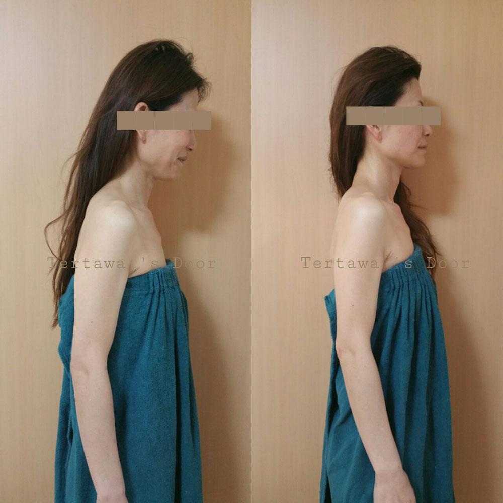 美容矯正 小顔矯正 効果写真 顔のコリ