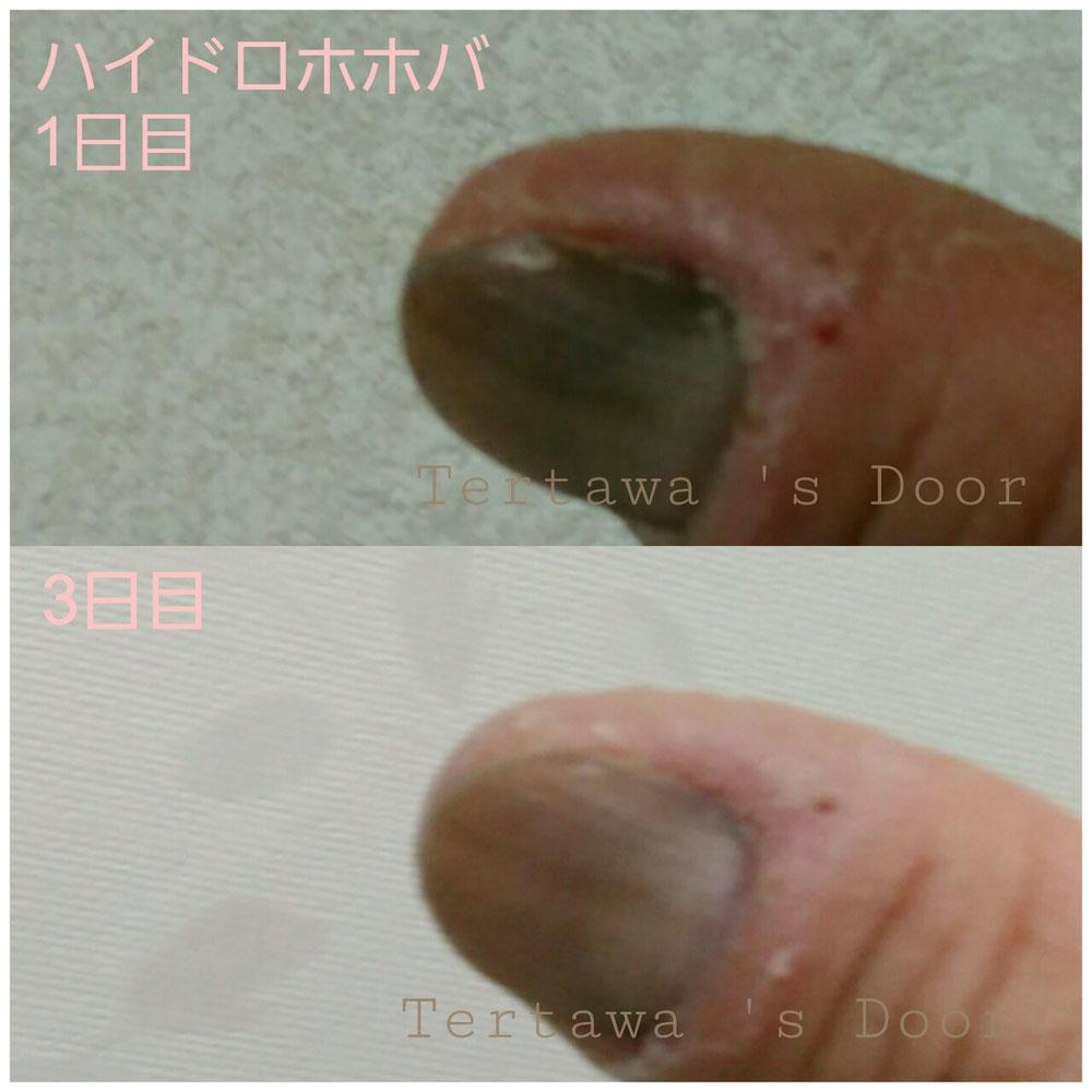ハイドロホホバ事例①手指の荒れ