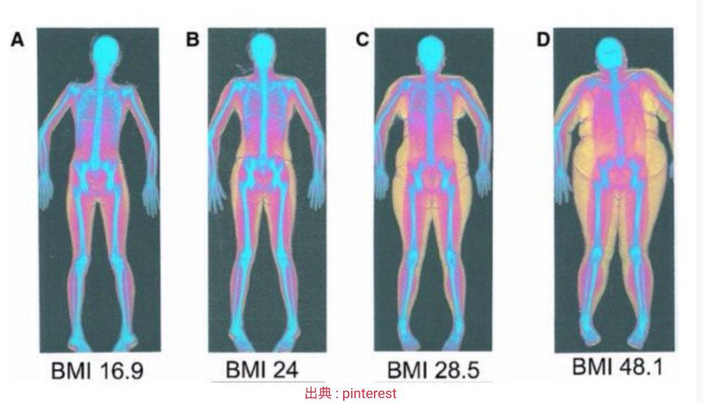体型 ダイエット X脚 内臓脂肪と皮下脂肪 袋井エステ
