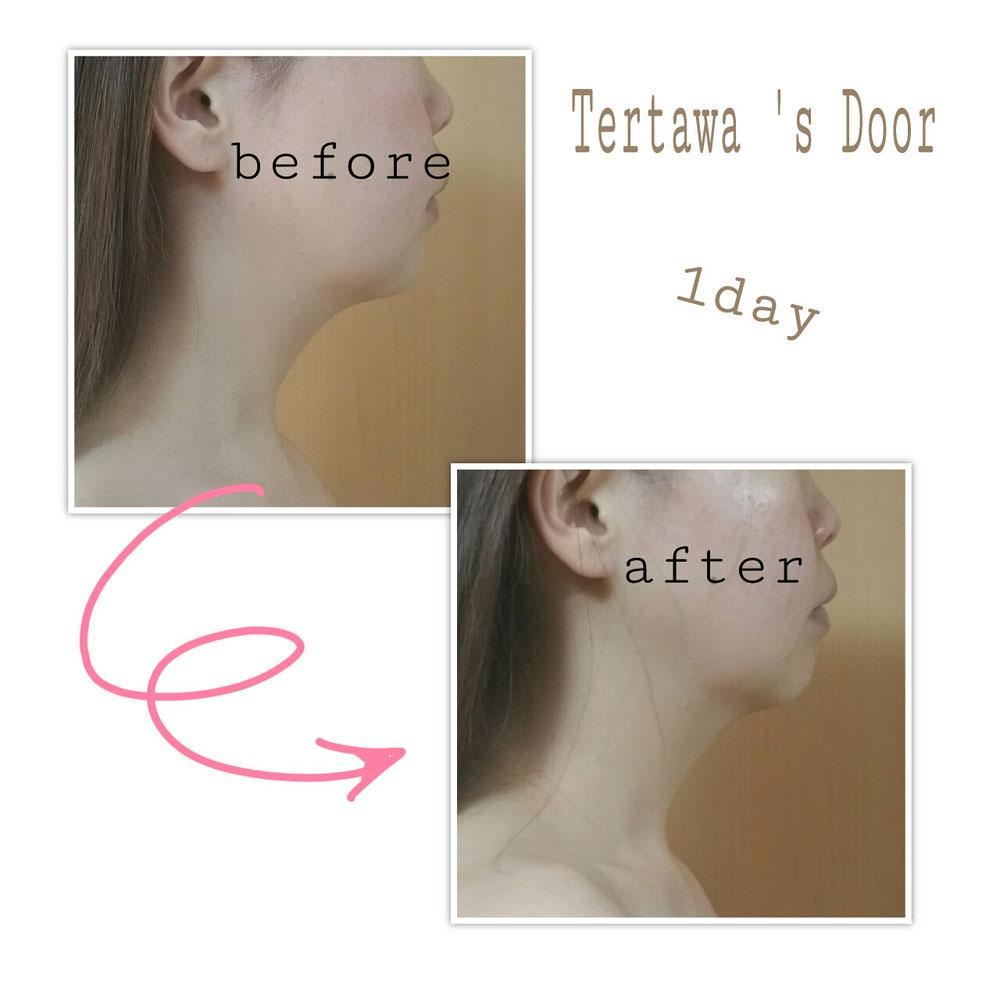 初回体験徹底小顔コース 顔の歪み たるみ 顔やせ