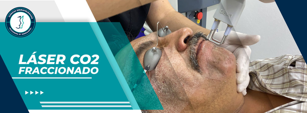 fraxel co2, laser pixel, deka laser, cicatrices de acne, laser acupulse, lase co2 deka, eliminar el acné