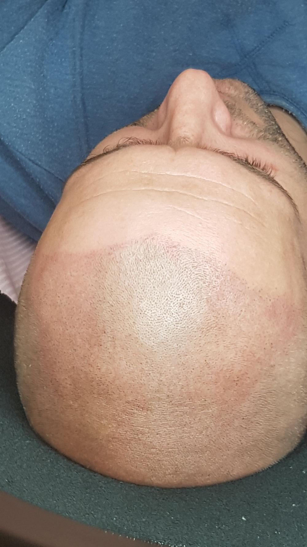Pigmatcja medyczna skóry głowy.