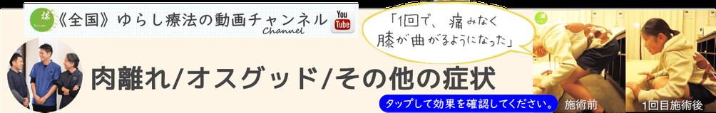 ゆらし療法の動画チャンネル(肉離れ・オスグッド・その他の症状)