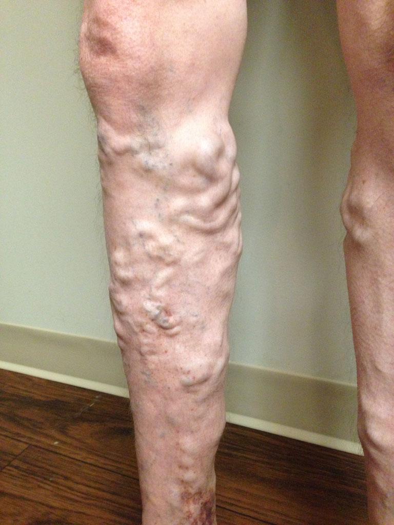 Endovenous Laser Vein Treatment - Vein Specialists