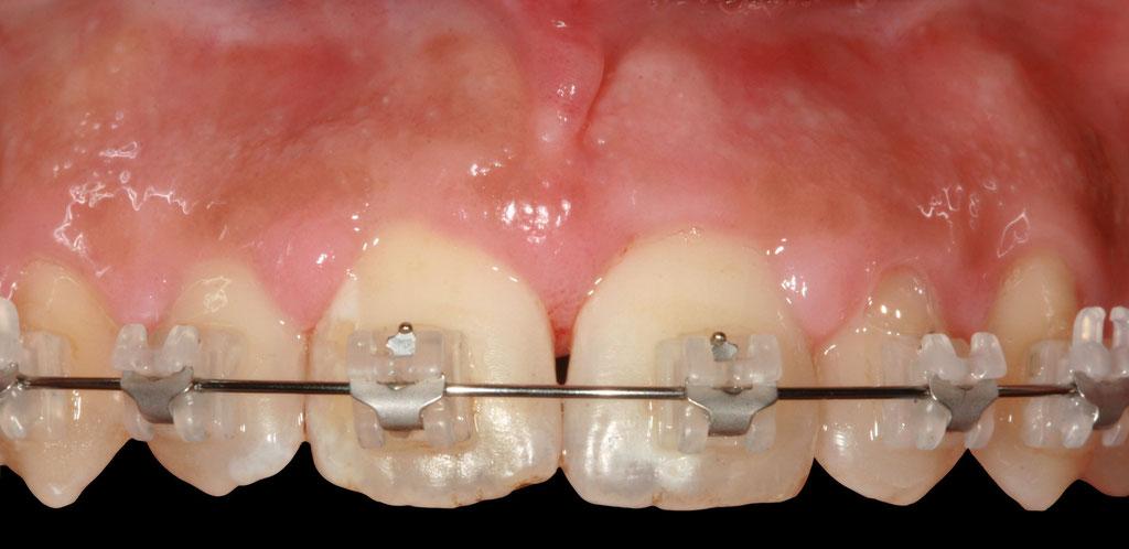 Parodontite et orthodontie - après traitement © ParoSphère