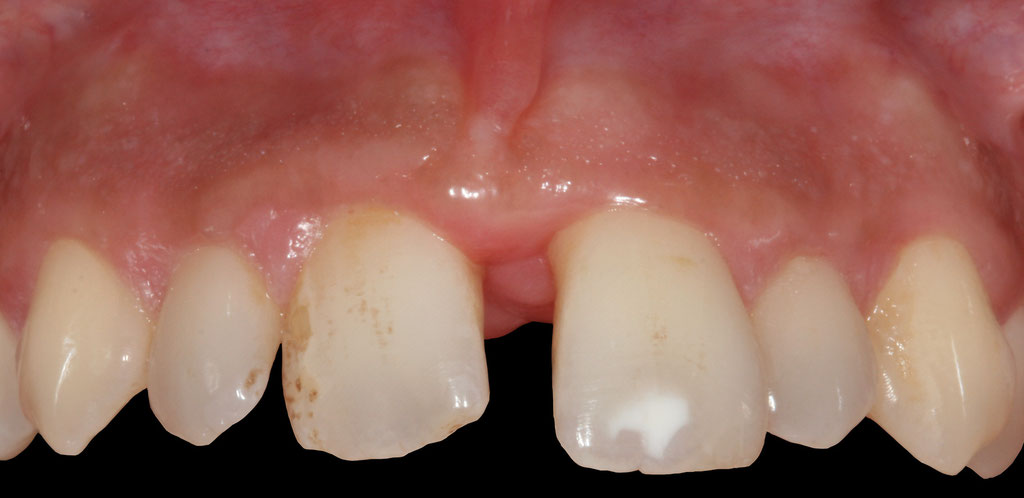 Parodontite et orthodontie - avant traitement © ParoSphère