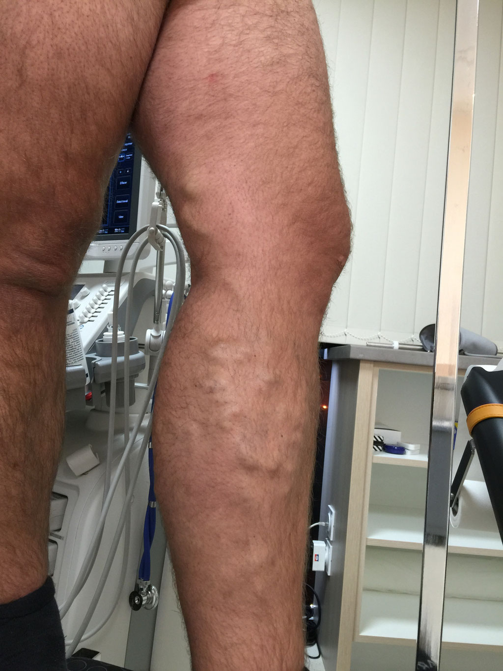 Varicose veins before Endoveinous Laser Ablation (EVLA)