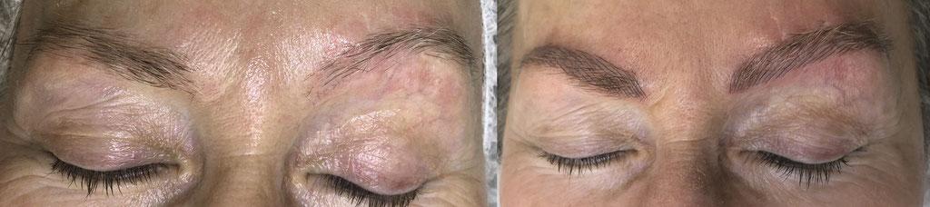 Microblading - Kundin mit Unfallnarben an den Augenbrauen