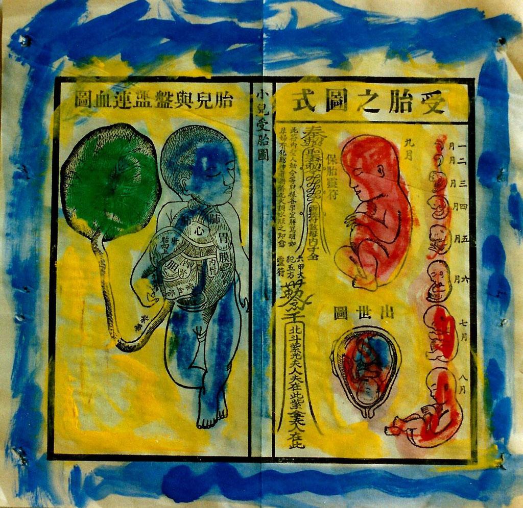 Pedro Meier – Chinesische Medizin Chirurgie Illuminiert – Acryl auf Papier 2005 – Foto © Pedro Meier / ProLitteris Multimedia Artist – Atelier: Gerhard Meier Weg Niederbipp – Olten – Bangkok