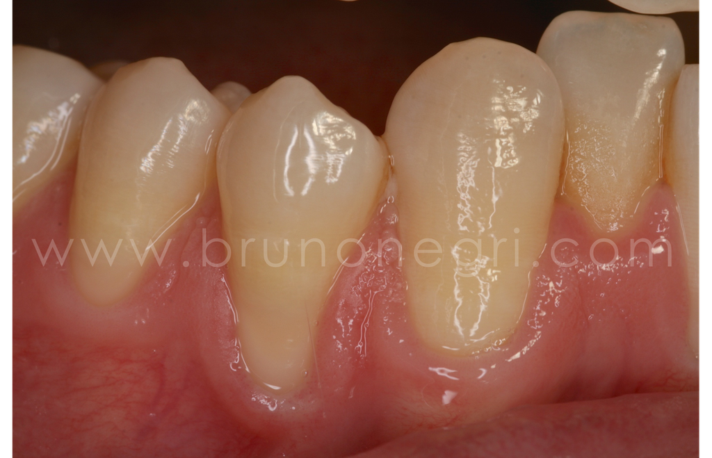 cubrimiento de rececesion, bruno negri, cirugia mucogingival, manejo de tejidos blandos, implantes zona estetica, bruno negri dental training center, clinica dental bruno negri, dentista pilar de la horadada, implantes murcia, injerto de encia bruno negri