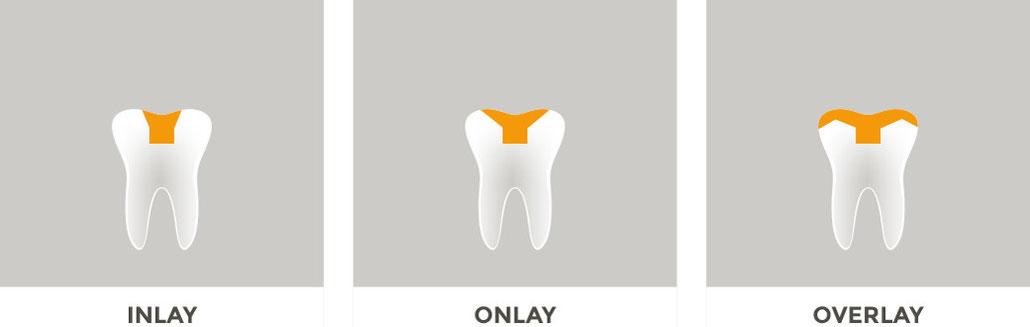 Zahnarztpraxis Osterburken - Grafik Inlay, Onlay, Overlay