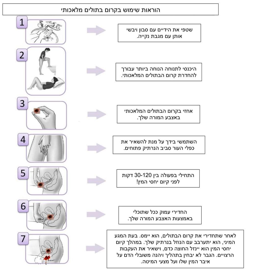 איך להשתמש במוצרי קרום הבתולים המלאכותי של