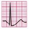 EKG ST-Senkung Aszendierend