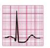 EKG ST-Senkung Horizontal