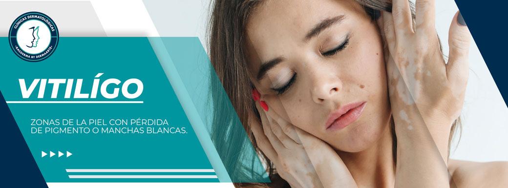 tratamiento para el vitiligo, machas de vitilígo, eliminar vitiligo, racderma