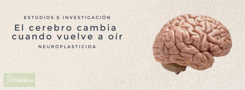 Plasticidad intermodal del cerebro y asignación de recursos corticales en relación con la pérdida auditiva.  La privación auditiva y/o la restauración a través de la amplificación pueden cambiar los centros de procesamiento cerebrales.