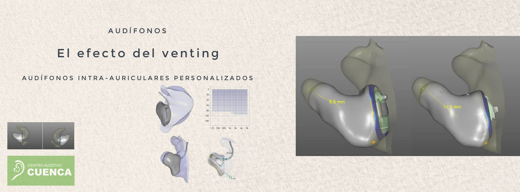 El efecto del venting. Audífonos intra auriculares personalizados. Centro Auditivo Cuenca, audífonos en Valencia.