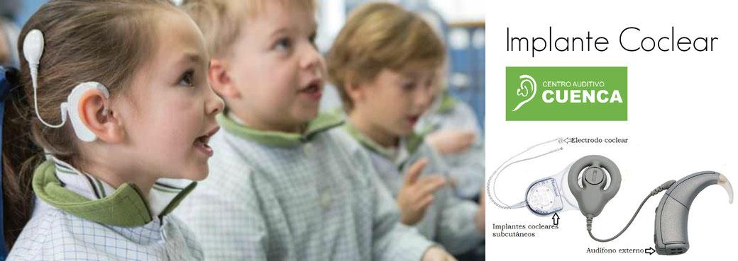 Implante Coclear en bebés y niños. La clave es el tiempo. Cuanto antes, mejor!