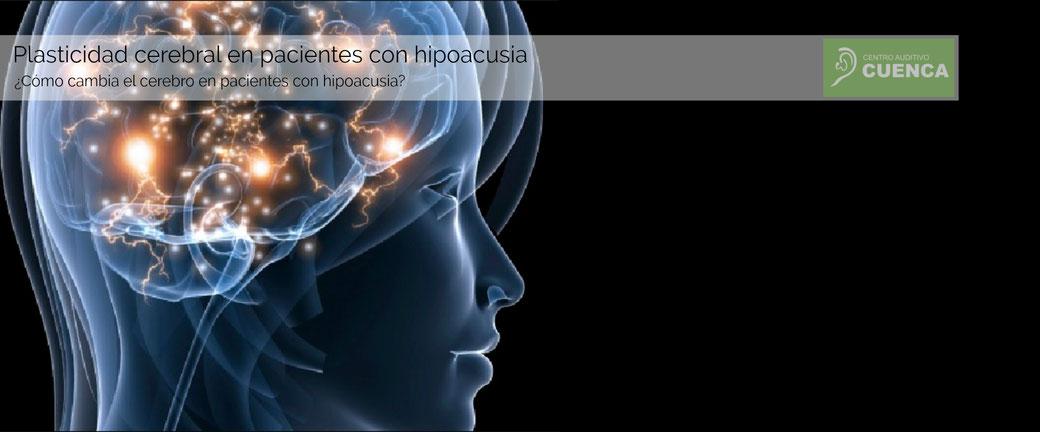 Plasticidad cerebral en pacientes con hipoacusia. ¿Cómo cambia el cerebro en pacientes con hipoacusia?