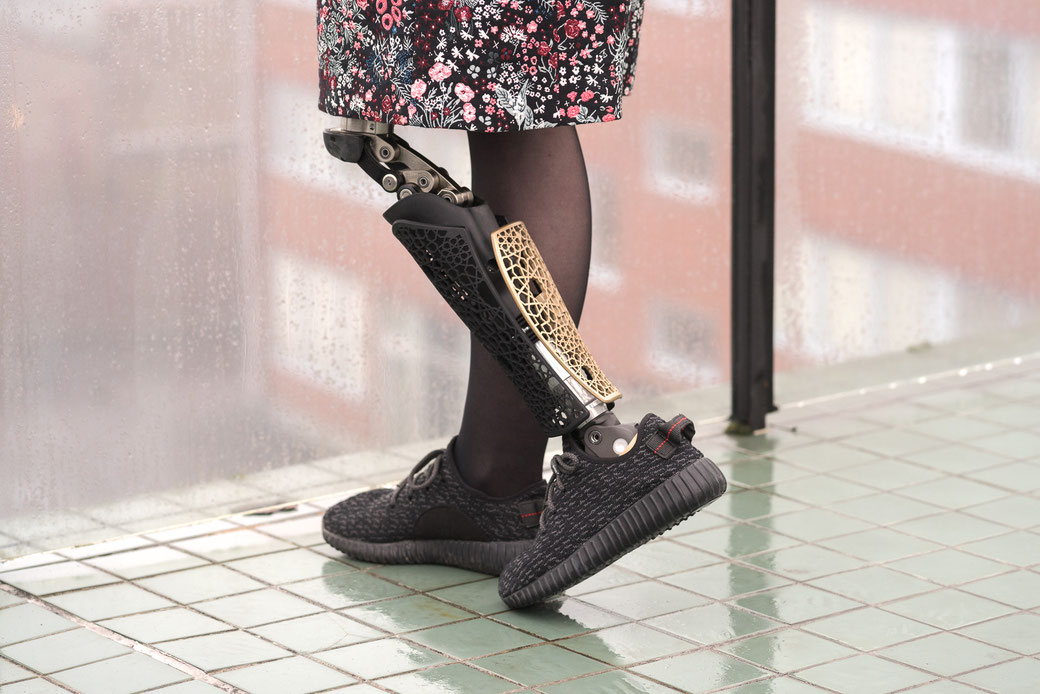 A cover is a great way to add individuality to an artificial limb (picture courtesy of Anatomic Studios)