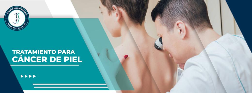 cáncer de piel, tratamiento para el cáncer de piel, dermatólogo para el cáncer, dermatólogo df