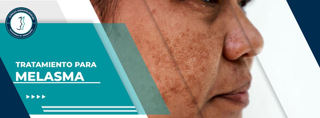 melasma, cloasma, paño, mañanas faciales, manchas por el embarazo, tratamiento laser para manchas, manchas en el rostro