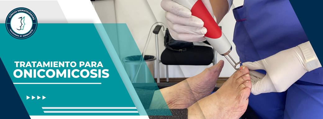 onicomicosis, hongos en los pies, dermatologo , dermatologo df, dermatologo cdmx
