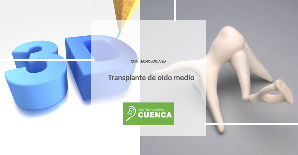 Transplante de Oído Medio con tecnología 3D.