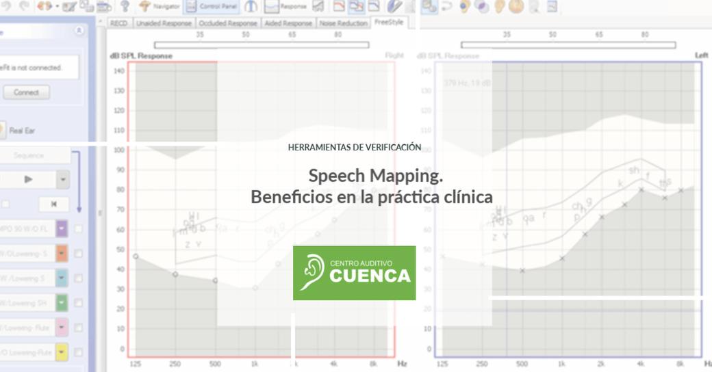 Los audífonos no tienen talla única. Nicole da Rocha analiza los beneficios de usar el Speech Mapping como herramienta de verificación.
